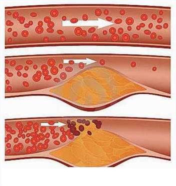 bệnh mỡ máu, điều trị mỡ máu, giảm mỡ máu, mỡ máu và cách điều trị, thuốc chữa bệnh mỡ máu cao,mỡ máu cao,chữa mỡ máu cao,điều trị mỡ máu cao,mỡ máu cao nên ăn gì,mỡ trong máu cao