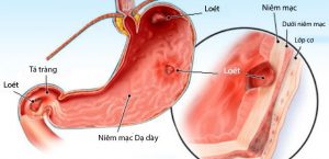 triệu chứng đau dạ dày
