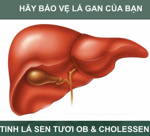 gan nhiễm mỡ, triệu chứng của gan nhiễm mỡ, gan nhiem mo