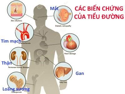 bien-chung-cua-benh-tieu-duong-1