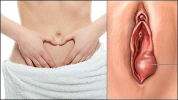 U nang khiến vùng kín sưng to, ngứa và đau rát